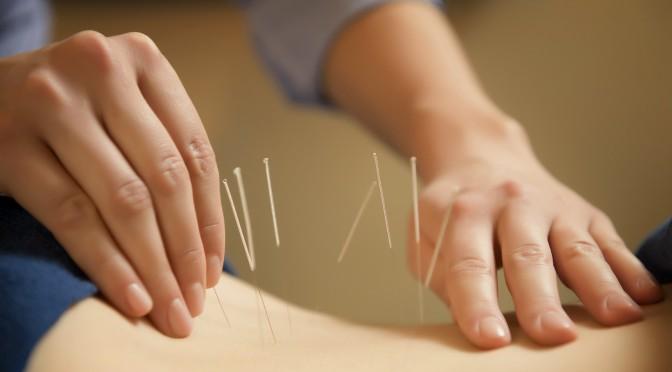 درمان عوارض سکته مغزی با طب سوزنی سنتی – ۱