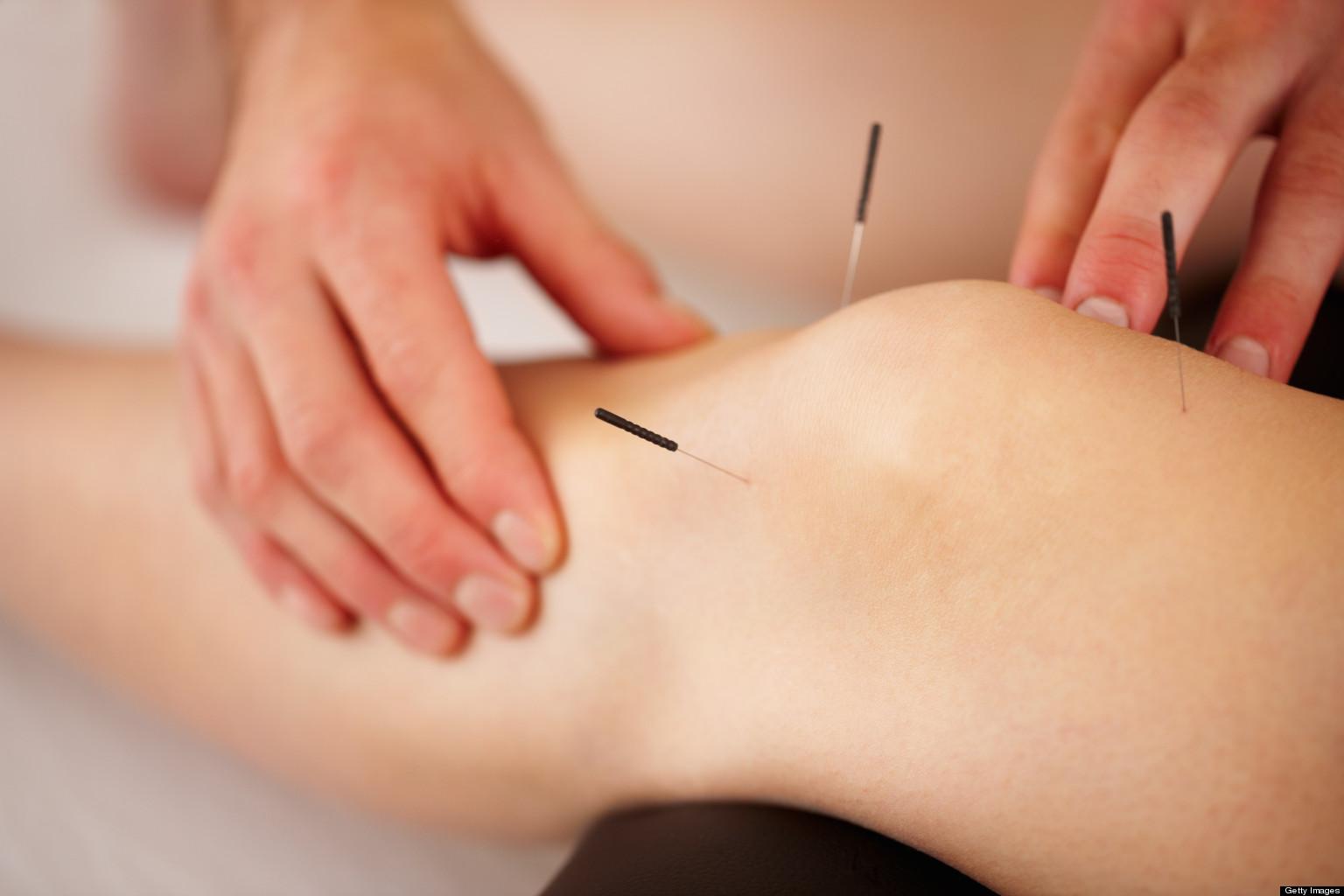درمان زانو درد با طب سوزنی