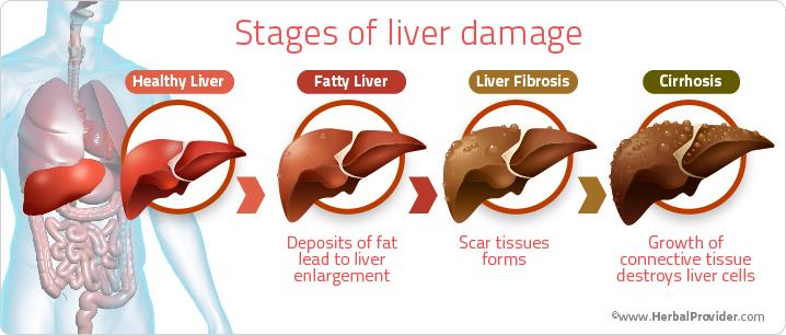Liver Damage Stages مراحل آسیب کبدی کبد چرب