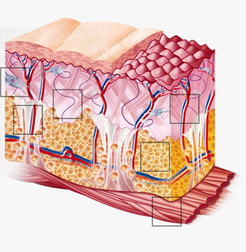 Different skin areas: Epidermis, Dermis, Hypodermis