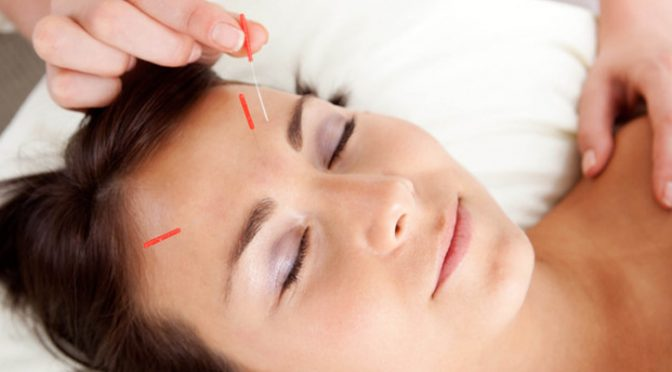 acupuncture-beauty-2