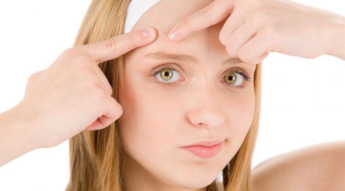درمان جوش صورت (آکنه) با طب سوزنی سنتی