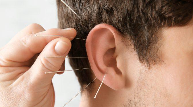 درمان بیماری ها با طب سوزنی گوش