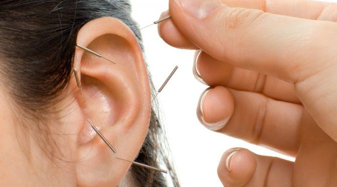 آموزش طب سوزنی گوش آریکولار تراپی
